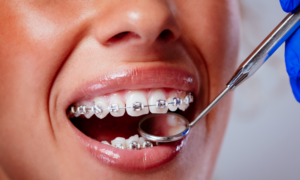 Person with braces being seen to by dentist